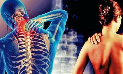 Цервикобрахиалгия: боль в шее, которая отдает в руку
