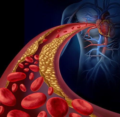 Новое средство поможет снизить уровень холестерина