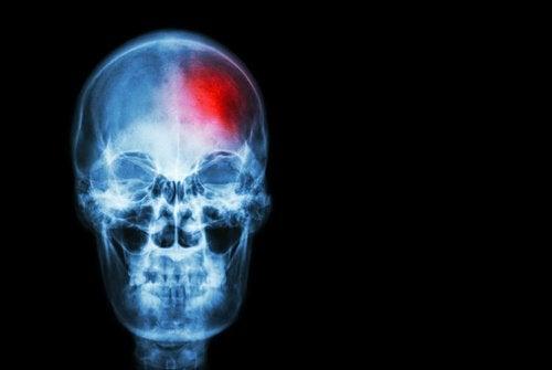 Ранние признаки и сигналы инсульта: 5 фактов, которые нужно знать