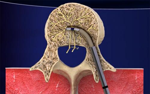 Интрасепт: лечение люмбаго с помощью нового метода
