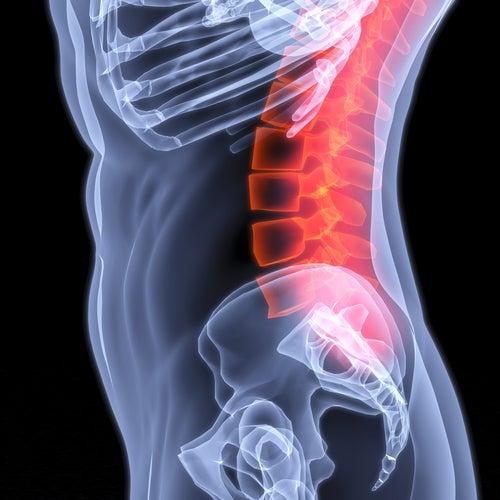 Лечение люмбаго: новый действенный метод в медицине