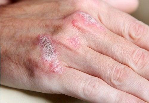 Аутоиммунные заболевания: 5 фактов, которые следует знать