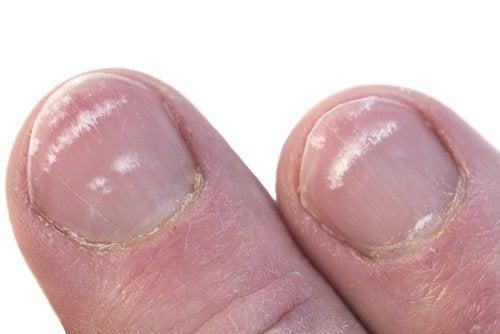Лейконихия, или почему появляются белые пятна на ногтях?
