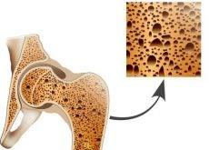 Остеопороз и профилактика
