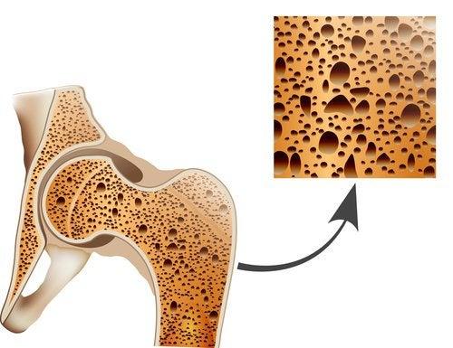 Как победить остеопороз при помощи натуральных средств?