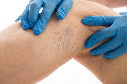 Варикоз нижних конечностей: как облегчить боли в домашних условиях?