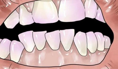 Как избавиться от зубного налета с помощью натуральных средств?