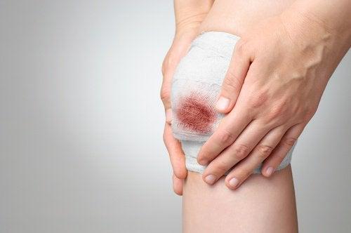 Ромашка поможет заживлять раны