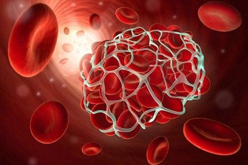 9 продуктов, которые помогают предотвратить тромбоз и эмболию