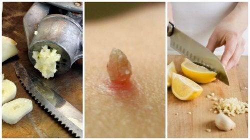Папилломы: как лимон и чеснок помогут покончить с ними