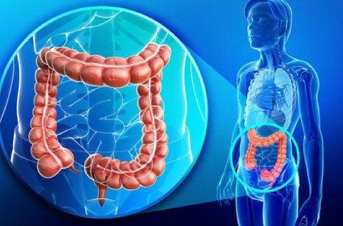 Как очистить толстый кишечник от токсинов естественным образом?