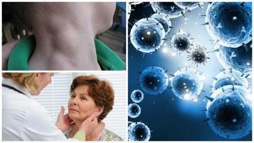 Лимфома — тихий вид рака, который успешно лечится при своевременной диагностике