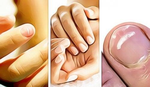 5 сигналов о проблемах со здоровьем, которые посылают вам ногти на руках