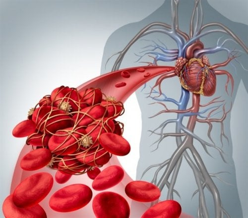 Тромбоз и эмболия
