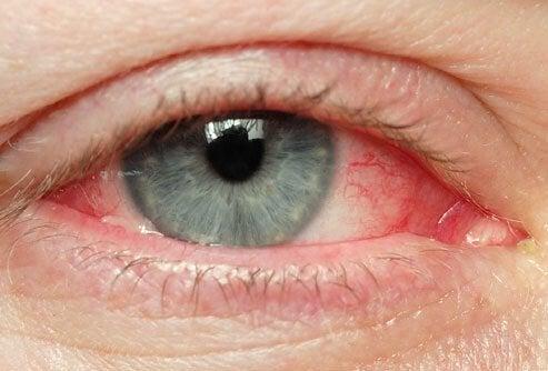 Сухость в глазах и обезвоживание организма