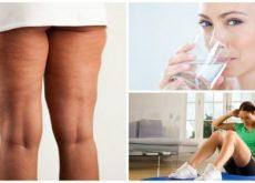 6 вещей, которые необходимы для успешной борьбы с целлюлитом