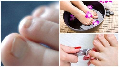 Онихомикоз ногтей: 7 фактов, которые необходимо знать каждому