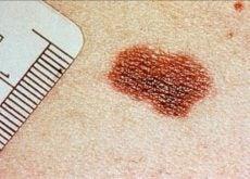 Возраст и рак кожи