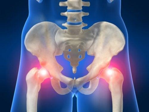 Боли в тазовой области и артрит