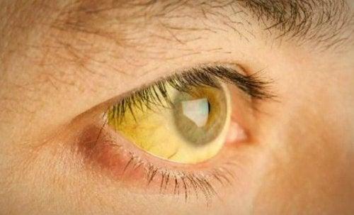 Проблемы с желчным пузырем: желтуха