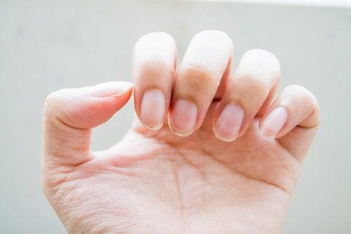 Ногти говорят о проблемах с кишечником