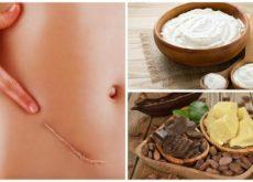 Шрамы и рубцы на коже можно разгладить натуральными средствами