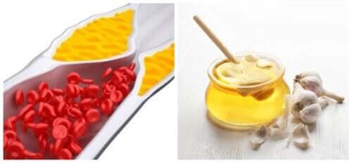 Как приготовить сироп, чтобы снизить уровень холестерина в крови и уменьшить боли в суставах