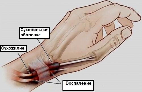 Тендовагинит: воспаление, о котором вы должны знать