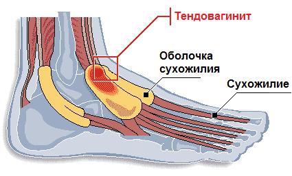 Тендовагинит