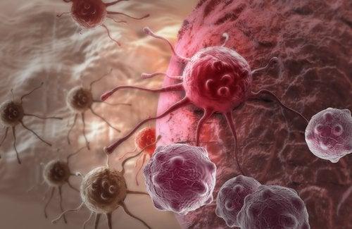 Куркума бережёт нас от рака