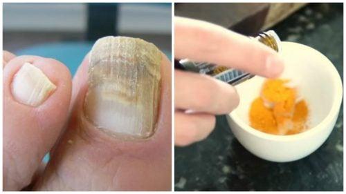 Грибок ногтей? Попробуйте натуральное средство на основе куркумы