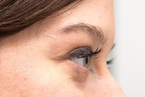 Мешки под глазами: причины и лечение натуральными средствами