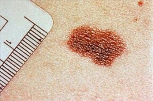 Рак кожи: симптомы, которые нельзя игнорировать