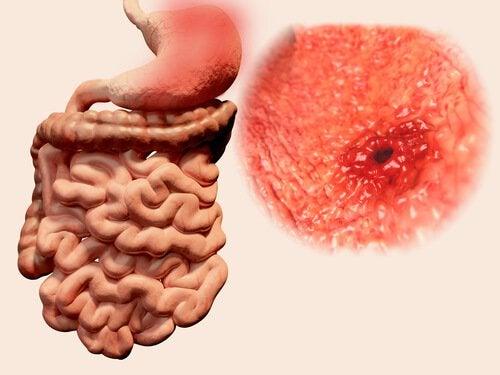 Газы в кишечнике могут быть симптомом язвы и паразитов