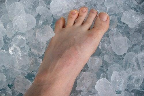 Лёд и тендинит