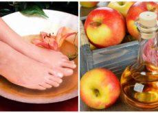 6 причин делать ножные ванны с уксусом