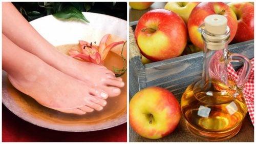6 причин делать ванночки для ног с яблочным уксусом