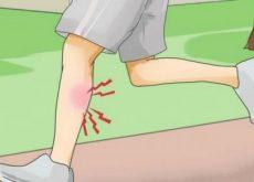 Что делать если у вас мышечная судорога