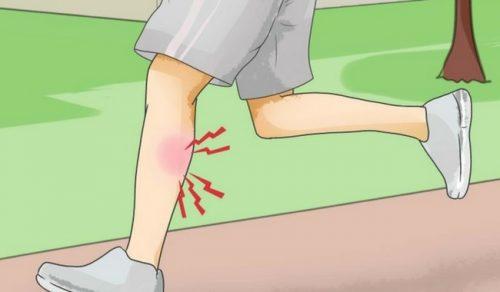 Что делать, если у вас случилась мышечная судорога?