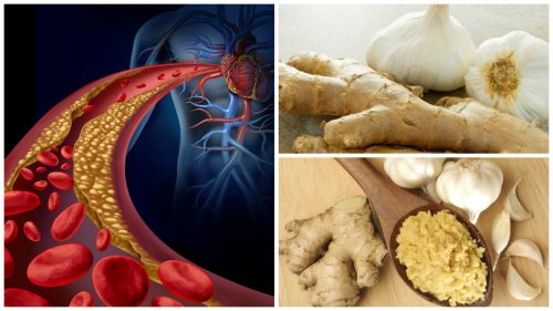 Средство из имбиря и чеснока для лечения гипертонии и снижения уровня холестерина
