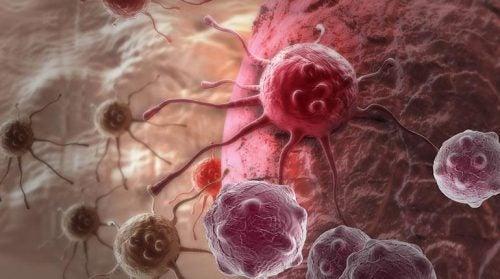 По данным нового исследования, это может быть ГЛАВНОЙ причиной рака