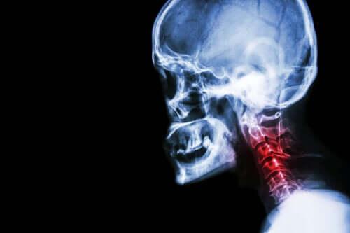 Шейный спондилез: симптомы и лечение натуральными средствами