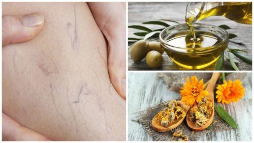 Средство из оливкового масла и календулы для лечения варикоза