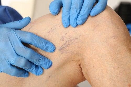 Варикозное расширение вен и лечение