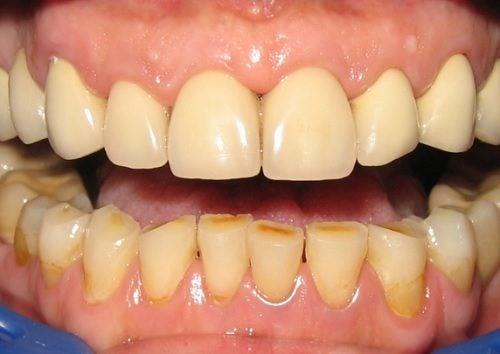 10 способов удалить налет на зубах натуральными средствами