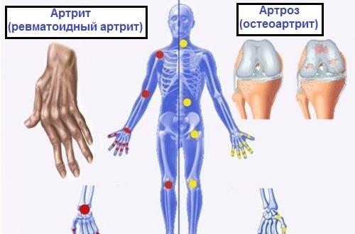 Разница между артрозом, артритом и остеопорозом: это нужно знать
