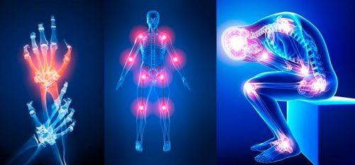 Болят суставы: 7 возможных причин