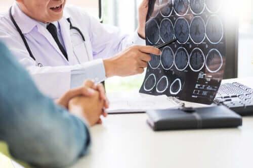Как организм предупреждает о приближении инсульта: 8 сигналов