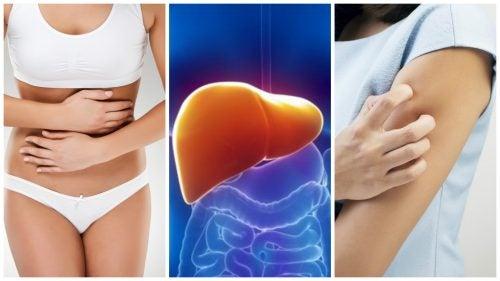 8 симптомов того, что ваша печень перегружена токсинами!