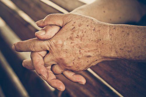 Возрастные пигментные пятна: 4 домашних средства профилактики их появления